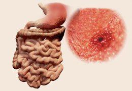 Como se alimentar em caso de úlcera no estômago?