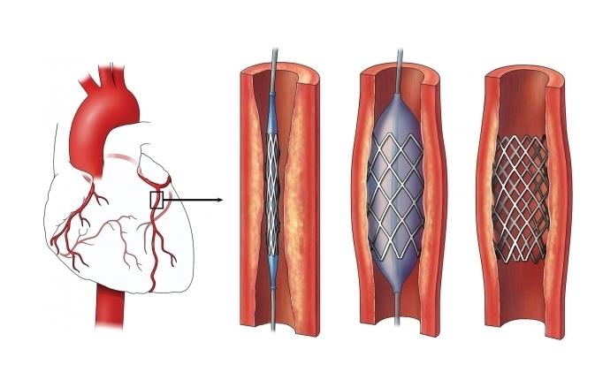 Como e feito o exame de cateterismo