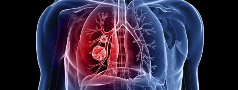 Enfisema pulmonar tem cura? Conheça seus sintomas e tratamentos