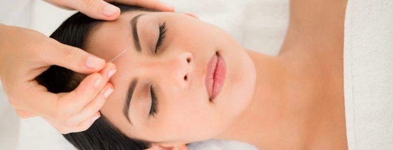 O que é acupuntura e quais seus benefícios para a saúde