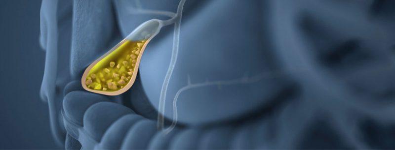 O que causa pedra na vesícula, quais seus sintomas e tratamentos?